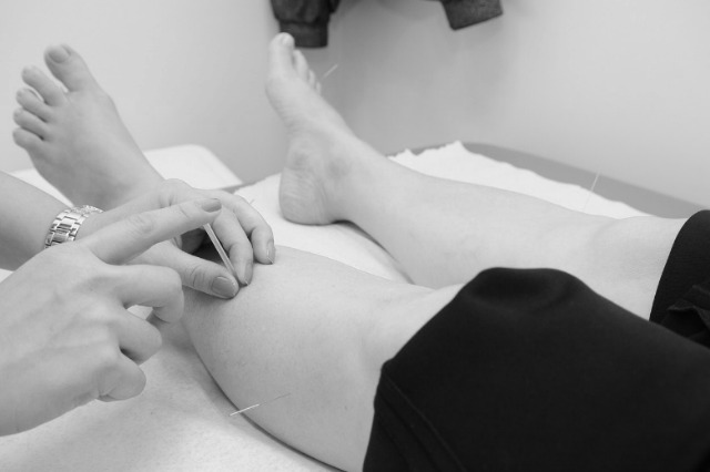 Practitioner applies acupuncture needles to a patient's leg
